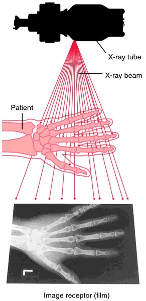 Radiograph | definition of radiograph by Medical dictionary